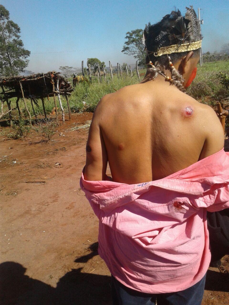Conflito armado envolvendo fazendeiros e Guarani-Kaiowás