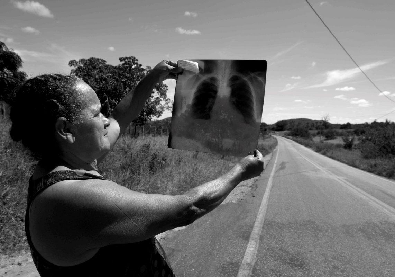 Credes Cardoso mostra o raio-X de suas placas pleurais: vítima do amianto mesmo sem ter trabalhado na mina (Foto: Inácio Teixeira/Coperphoto)