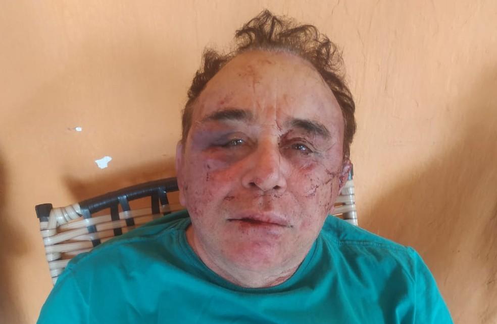 Candidato à prefeitura de Santa Teresinha, na Paraíba, José Arimateia Camboim foi atacado em sua fazenda: o agora prefeito eleito ainda se recupera da violência (Foto: Redes Sociais)