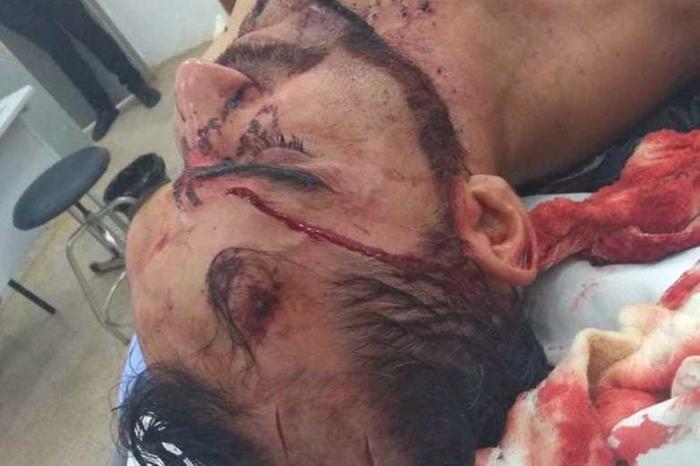 Candidato a vereador em Alto Paraíso (RO), Anderson Santana foi sequestrado a caminho de carreata e torturado (Foto: Reprodução)